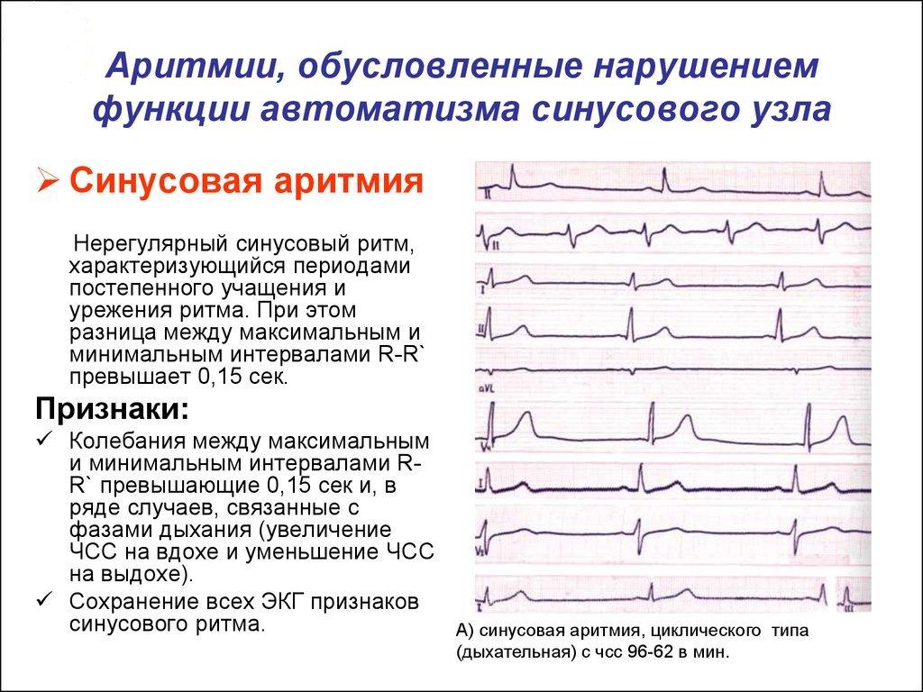hipertenzija arba vd kaip atskirti riebalų nauda ir žala sergant hipertenzija