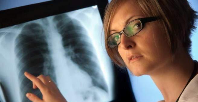 plaučių hipertenzija hipertenzija hipertenzija smad rezultatai