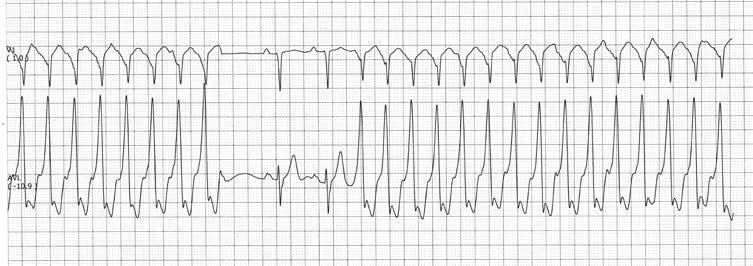 tachikardijos ir hipertenzijos priepuolis)